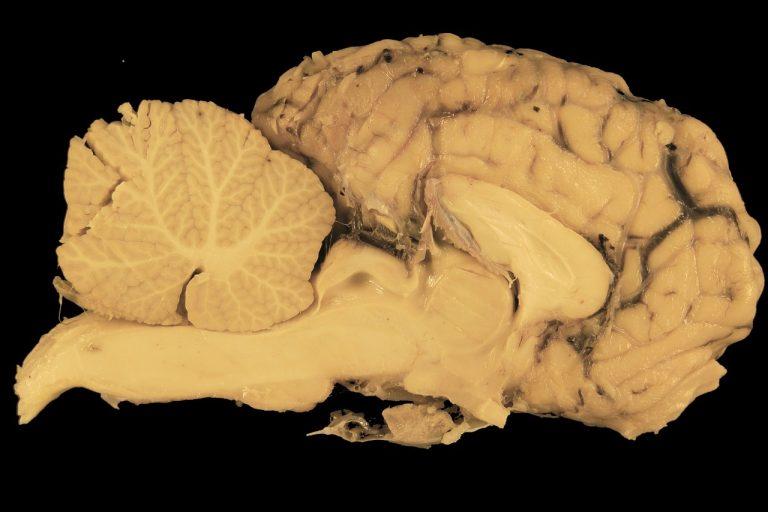 Querschnitt Gehirn Pferd